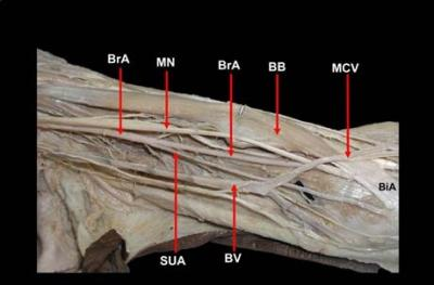 Figure  1:  Dissection  of  the  front  of  the  arm  showing  the high  origin  of  superficial  ulnar  artery  (SUA)  from  the brachial artery (BrA). Median nerve (MN) and biceps brachii muscle  (BB)  are  pushed  laterally  to  expose  the  vessels. (MCV-  Median  cubital  vein,  BiA-  Bicipital  aponeurosis, BV- Basilic vein)