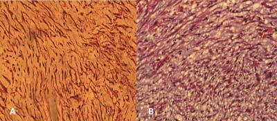 Figure 1: A) Proliferation of slender spindle cells (high power x 10), B) Myxoid and oedematous stroma (high power x 10)