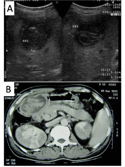 Figure 1: A) USG showing mass at gall bladder fossa B) CECT scan showing worm ball at gall bladder fossa causing extrinsic compression of antrum of stomach.