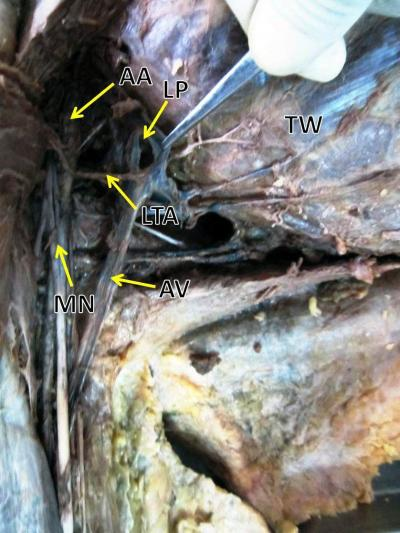 Figure 1: Dissection of right axilla showing the perforation of axillary vein (AV) by the lateral thoracic artery (LTA), branch of second part of axillary artery (AA). MN: median nerve, LP: loop in the AV, TW: thoracic wall.