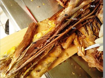 Figure 1: Right side of Arm showing Cb: Coracobrachialis, Bb: Biceps brachii, Bh: Brachialis, Mn: Median nerve, Ncb: Nerve to coracobrachialis, Nbb: Nerve to Biceps brachii, Lcnf: Lateral cutaneous nerve of forearm.