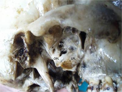 Figure 1: Showing the Right side complete ossified pterygospinous ligament. PSF-Pterygospinous Foramen; OPL-Ossified Pterygospinous Ligament; LPL-Lateral Pterygoid Lamina, FOV-Foramen ovale.