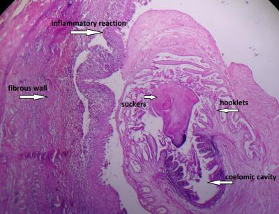 Figure 1: Hematoxylin and eosin stained histopathology image showing larval form of cysticercus.