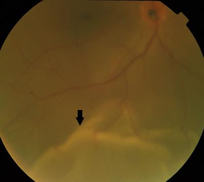 Figure 1: Fundus photograph of right eye showing retinal detachment with macula-off.