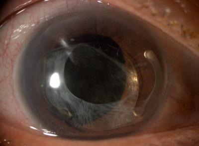 Figure 1: a) Anterior segment photograph of the right eye show inganterior dislocation of in-the-bag PCIOL;