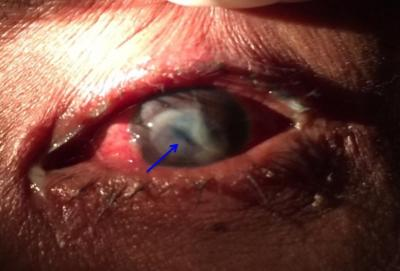 Figure 1: On presentation, anterior segment photo of the left eye showing a suspicious corneal laceration wound with large stromal abscess.