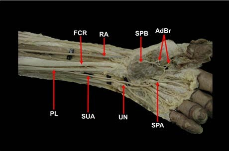 High Origin of Ulnar Artery with Unusual Superficial Course and ...