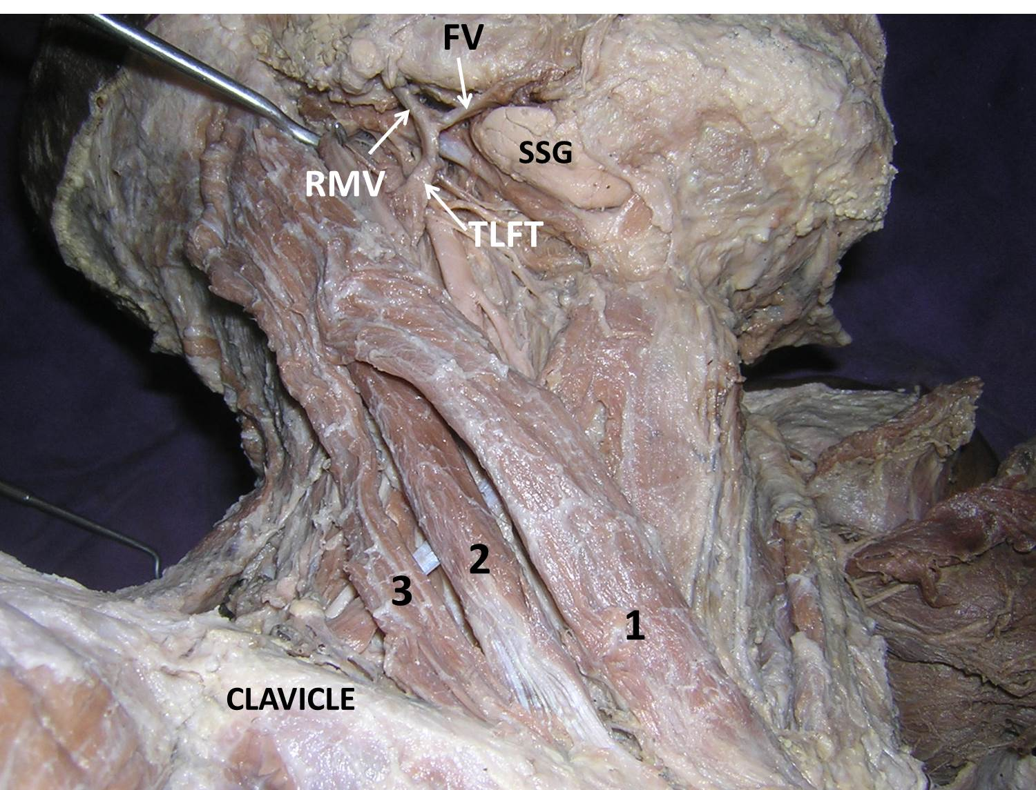 Occurrence Of Three Headed Sternocleidomastoid Muscle And A Common