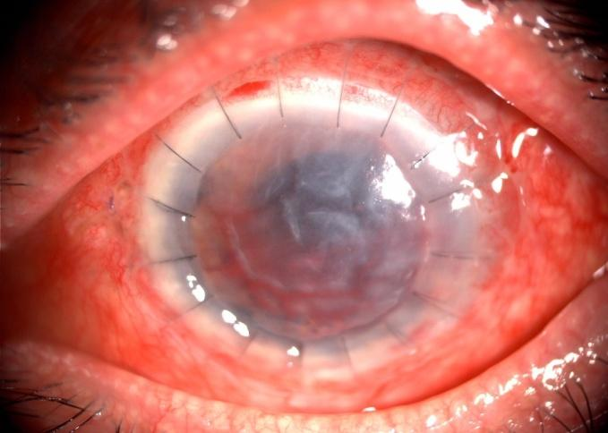 steroid induced glaucoma after lasik