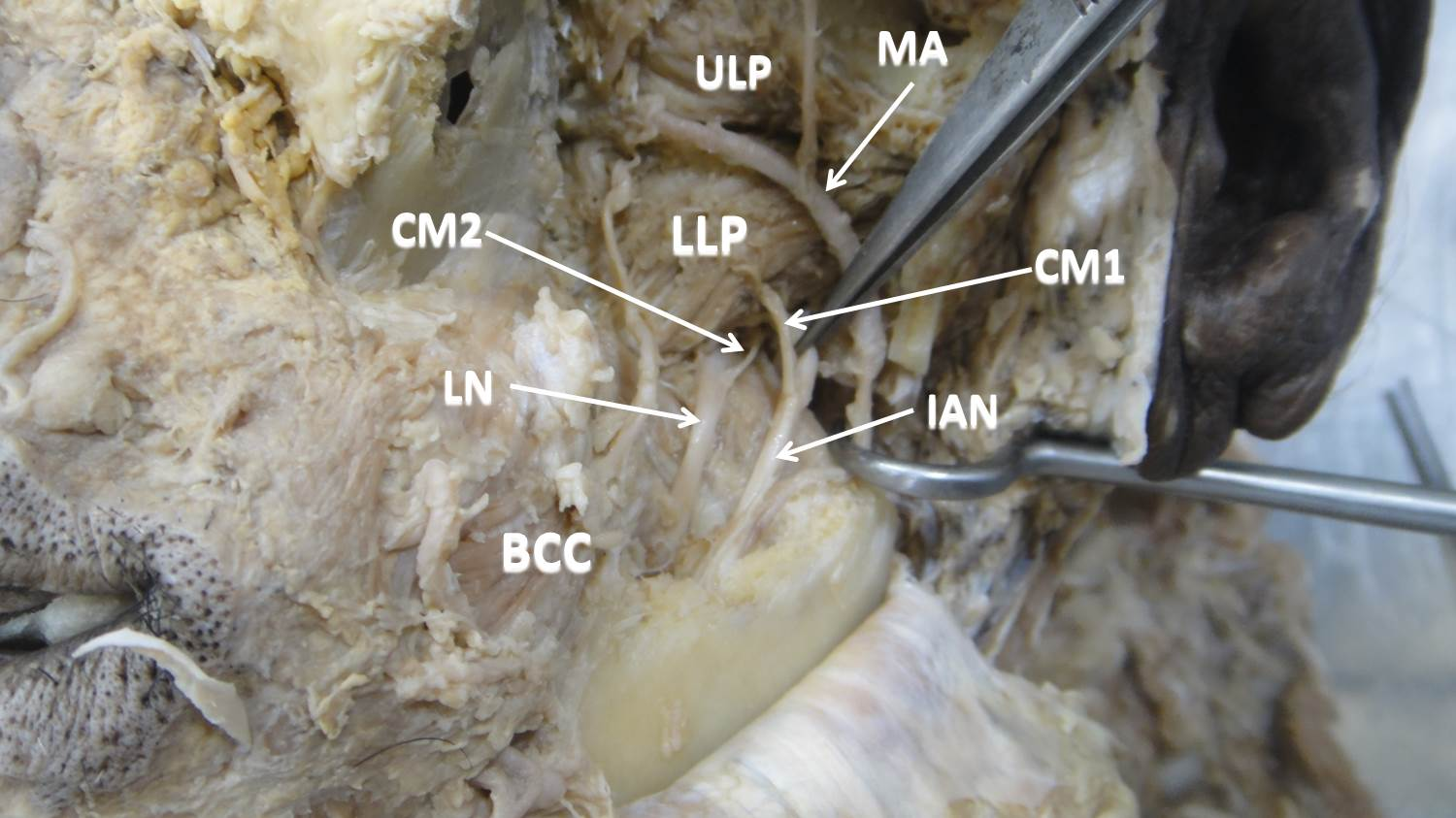 Abnormal Communications Of The Inferior Alveolar Nerve With Anterior