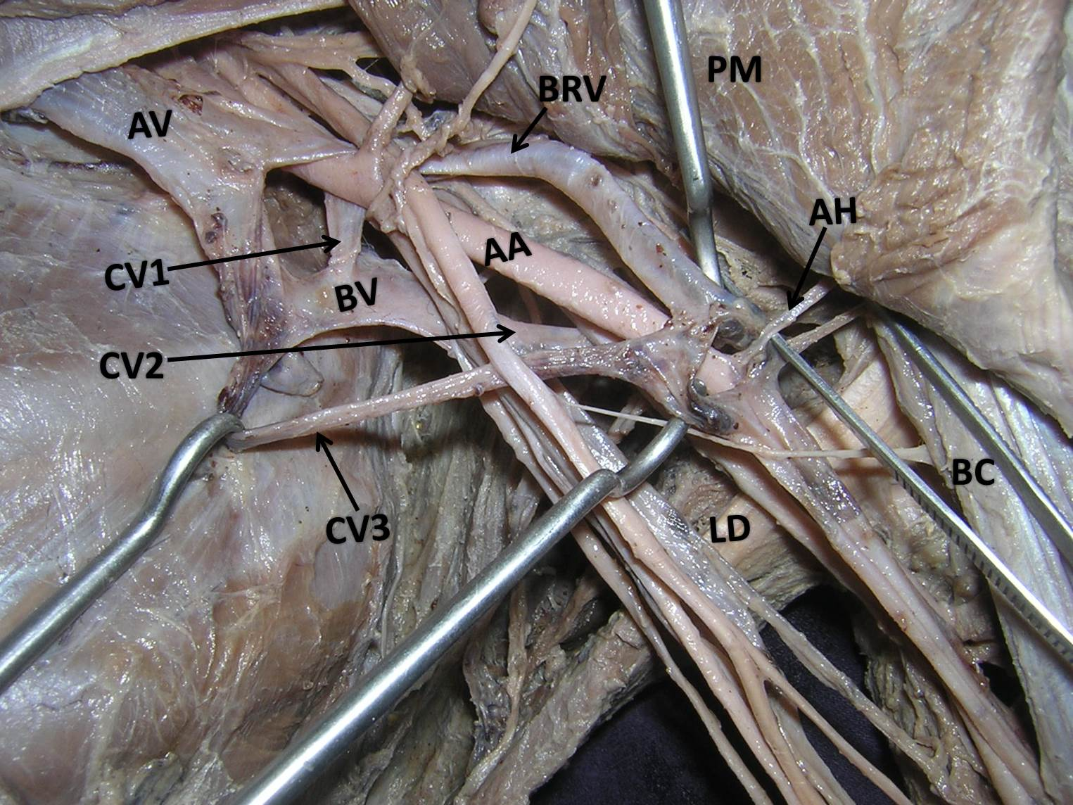 Short Axillary Vein and an Axillary Venous Ladder Formed by Basilic ...