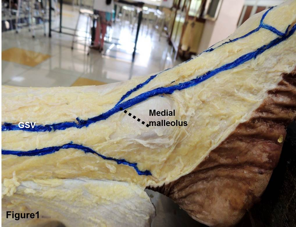 The Great Saphenous Vein An Anatomical Study Journal Of Surgical