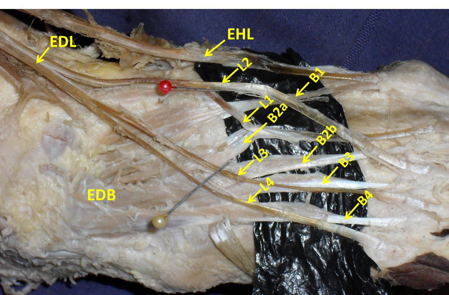 Anatomical Variation of the Extensor Tendons of the Second Toe in ...