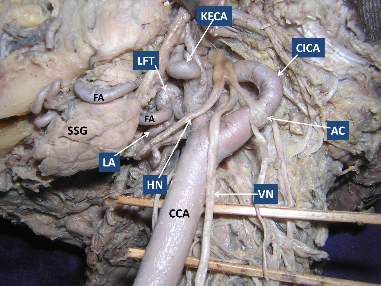 A Rare Unilateral Variation In The Course Of External And Internal