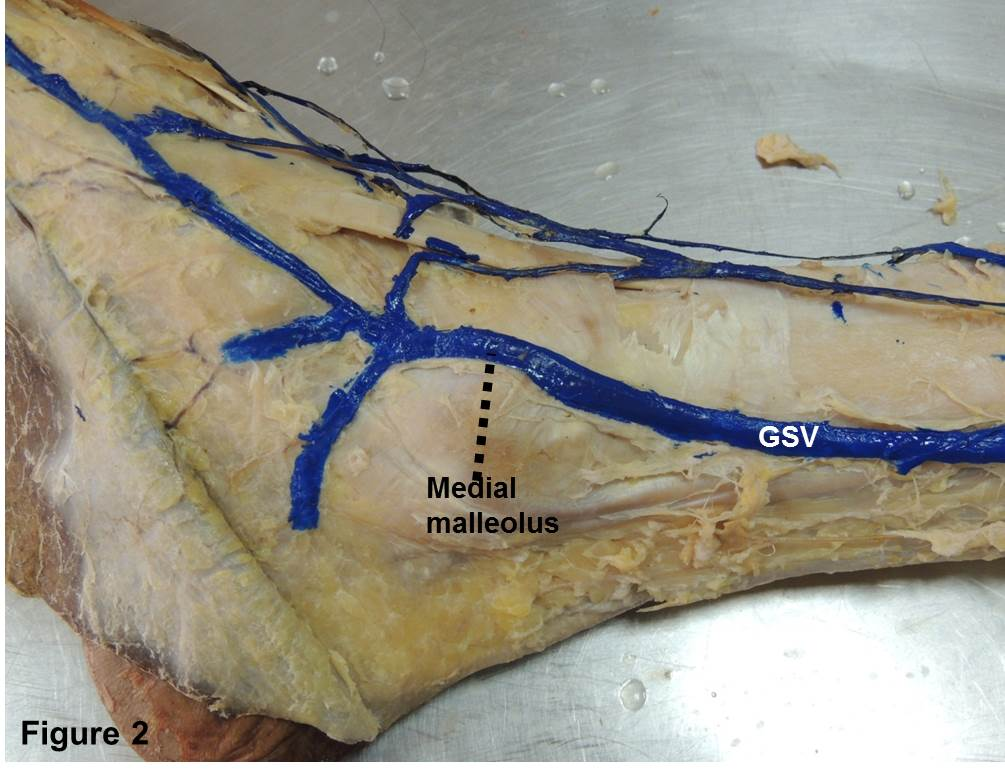 The Great Saphenous Vein-An Anatomical Study | Journal of Surgical ...