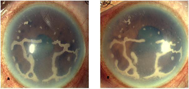 presumed tuberculous keratopathy  a rare presentation of