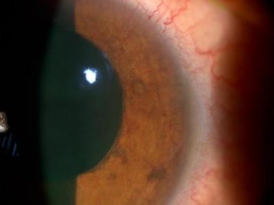 Fig1: Florid anterior segment iris neovascularisation (INV)