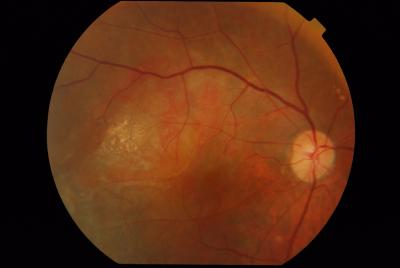 Figure 1: Fundus photograph of the right eye of Patient 6 showing Exudative AMD involving the right fundus as evidenced by subretinal hard exudation and haemorrhagic pigment epithelial detachment