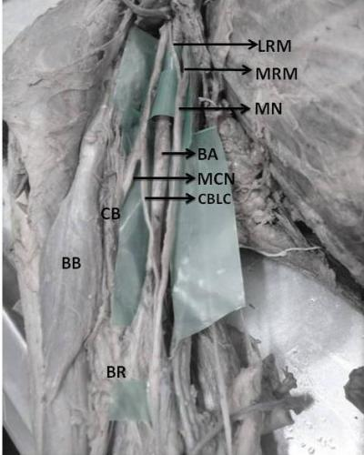 Figure 1: Dissection of front of the right arm: Formation of median nerve trunk (MN) from lateral root (LRM) and medial root (MRM) of median nerve and its relation with brachial artery (BA) is shown. CB: Coracobrachialis, BB: Biceps brachii, BR: Brachialis, MCN: Musculocutaneous nerve, CBLC: communicating branch from lateral cord of brachial plexus.