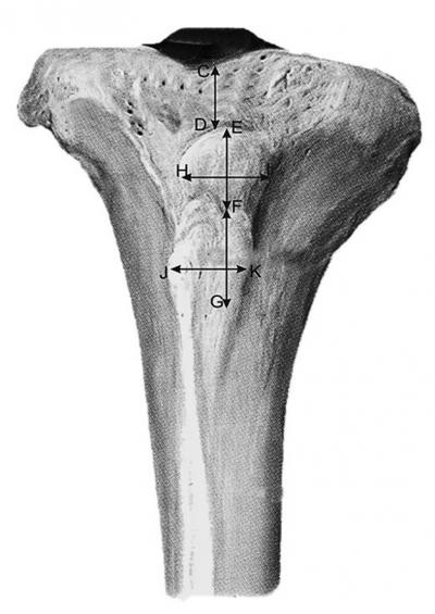 Figure 1: Anterior view of tibia. (CD: Distance of tibial tuberosity from the anterior border of intercondylar area, EF: Length of upper smooth part of tibial tuberosity, FG: Length of lower smooth part of tibial tuberosity, HI: Breadth of upper smooth part of tibial tuberosity, JK: Breadth of lower smooth part of tibial tuberosity)